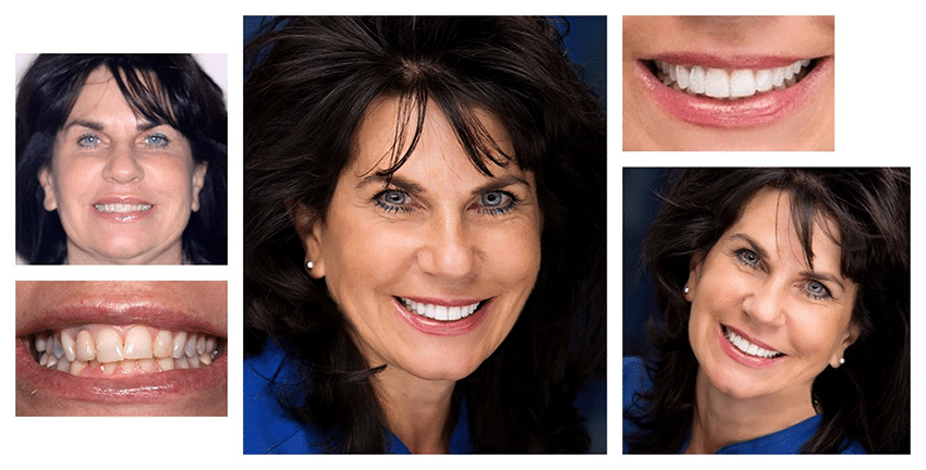 A collage of a female dental patient showing off improvements to her smile