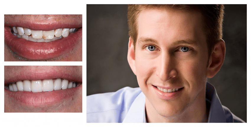 A before & after comparison for a patient of Excellence in Dentistry