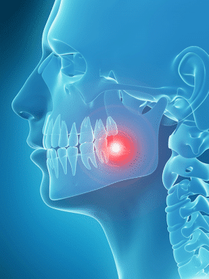 Wisdom tooth image, showing pain