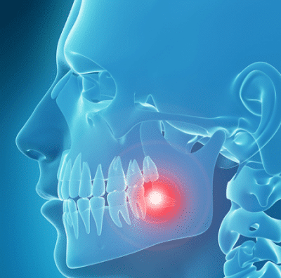 A graphic depicting a wisdom tooth growing in at an angle within the mouth