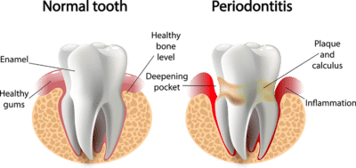 Gum Disease: A Threat to Your Health
