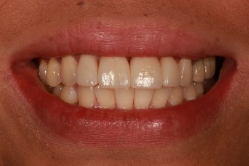replaced composite fillings on her front teeth with beautiful porcelain veneers and crowns