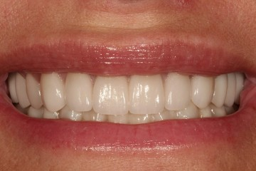 restored full mouth with porcelain crowns.
