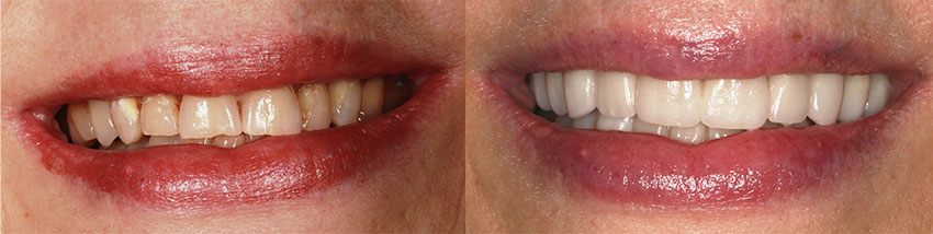 A before & after comparison smile of a female patient of Excellence in Dentistry