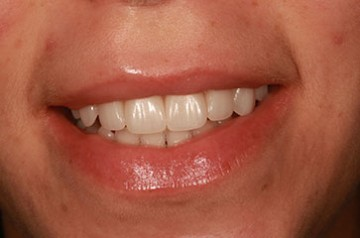 closeup of smile after cosmetic dental procedure