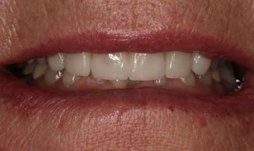 restored smile thanks to Dr. Kendall Skinner