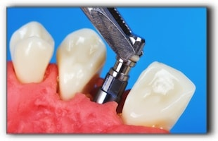 Getting ready for a dental implant