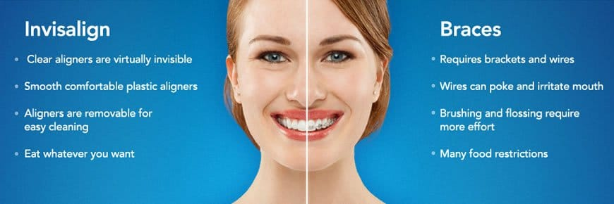 A woman smiling showing the difference between Invisalign and braces
